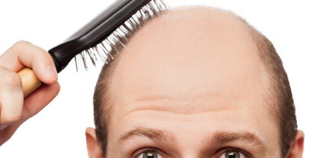Saç Ekimi Sonuçlarım
